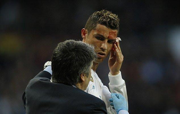 «Послематчевое селфи испорчено!»: Криштиану Роналду разбили лицо во время игры